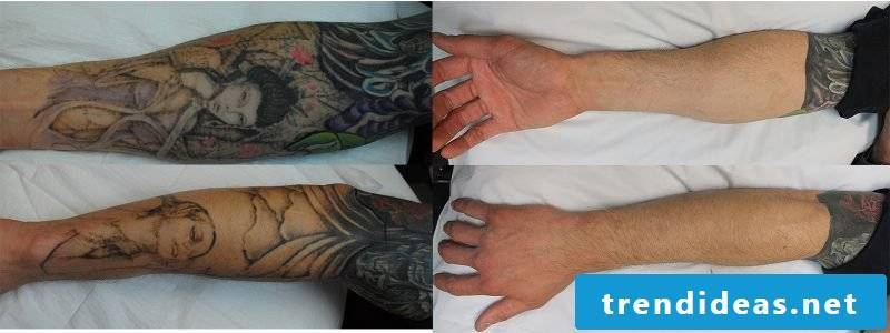 Remove tattoo tips