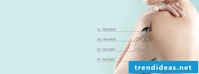 Tattoo removal treatments